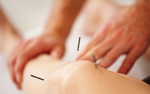 What is Dry Needling: How is it Different to Acupuncture?